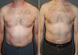 Male Breast Reduction.