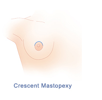 Breast Enlargement with Crescent Lift