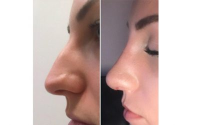 Rhinoplasty Can Be Life Changing.