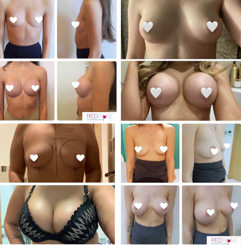 Breast surgery before and afters